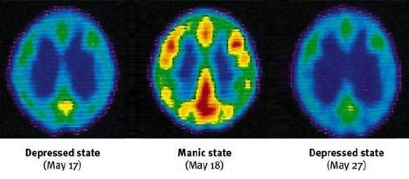 pet-brain-scans-of-bipolar-disorder-mania-depression